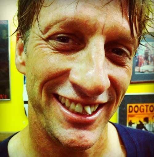 tony-hawk-sem-dente-torto