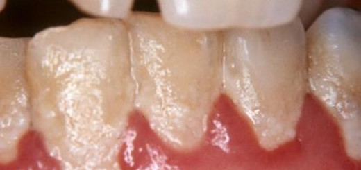 Foto de Placa Bacteriana nos Dentes