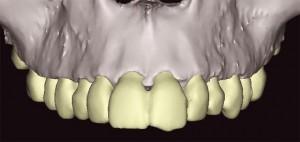 prototipagem para dentistas