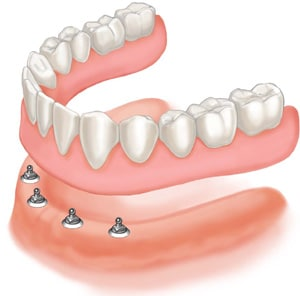Prótese Total sobre implante