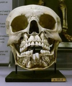 Cranio Dentes de Leite e Permanentes