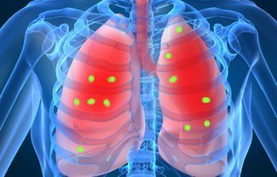 periodontite e doença respiratória