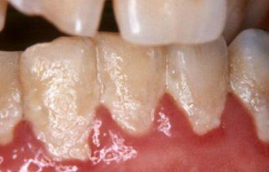 Foto de Placa Bacteriana nos Dentes