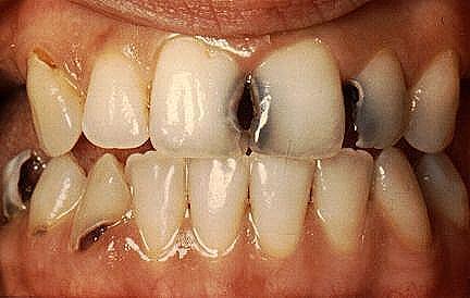 Dente Podre tem solução