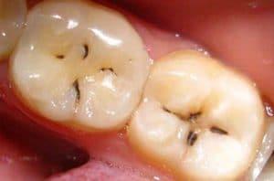 Ponto preto no dente