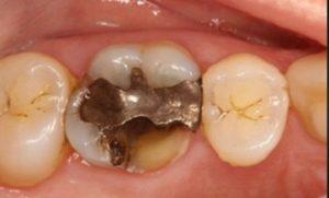 Tratei o canal e o dente quebrou