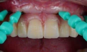 Higienizar os implantes dentários é muito importante