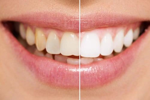 Clareamento Dental Verdades E Mitos Odontoblogia