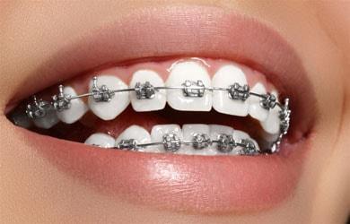Clareamento dental e aparelho ortodôntico