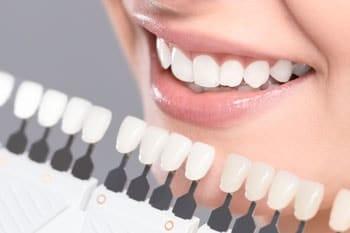 Clareamento dental e prótese dentária