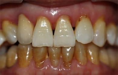 fumantes podem fazer clareamento dental